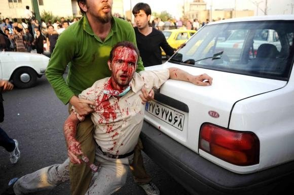 Wounded protester. Photo by .faramarz