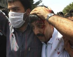 Injured protester outside of Tehran University, July 17. Photo by .faramarz