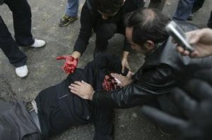 A demonstrator who was shot during anti-government protests in Tehran on Sunday, Dec. 27, 2009.