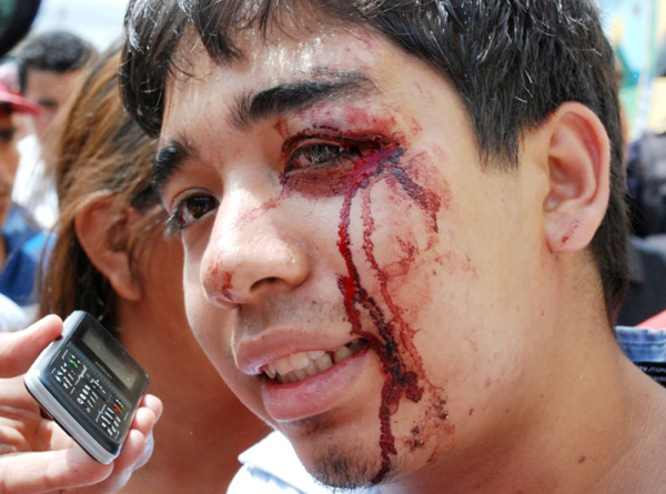 Injured student at a demonstration on July 30. Photo by Gilberto on Picasa.